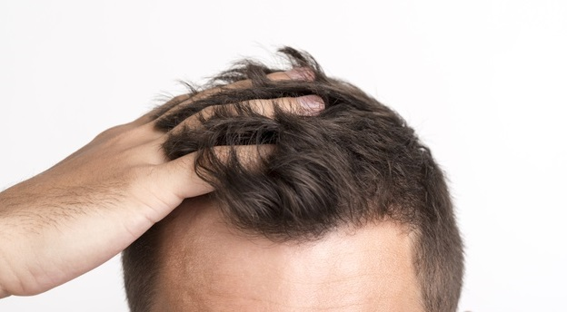 Causes and Remedies for Hair Fall in Men